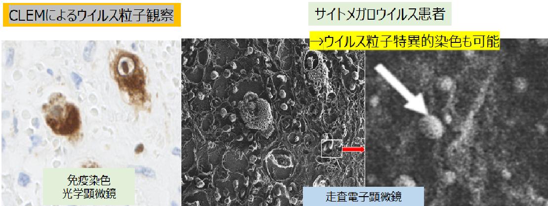 サイトメガロウイルスの観察像です