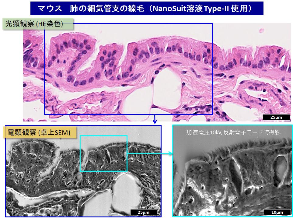 マウス肺気管支の画像