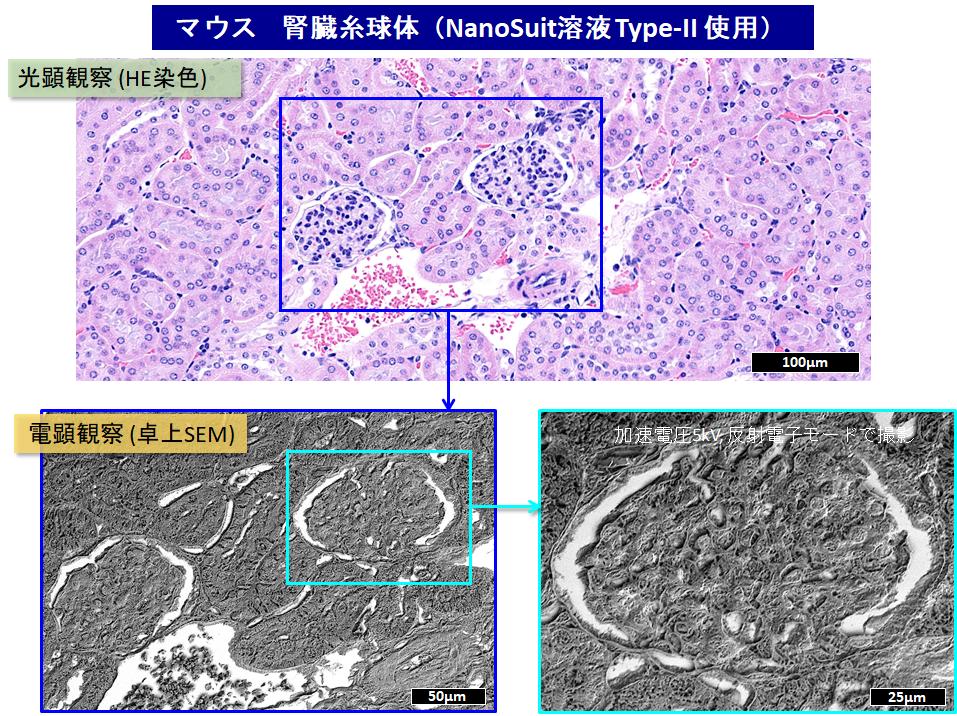 マウス腎臓の画像